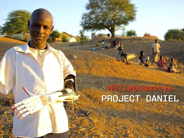 how-a-100-3d-printed-arm-is-saving-the-children-of-sudan